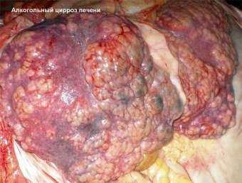 Чем лечить заболевание печени у кур