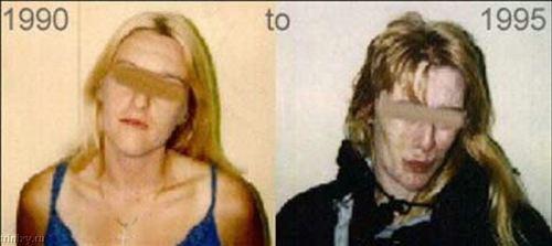 ФОТО наркоманов до и после