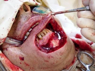 тату зубов фото